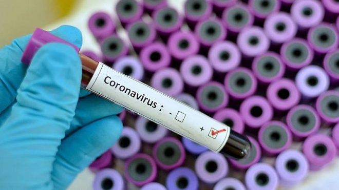 Comunicado #3 por Coronavirus